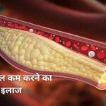 कोलेस्ट्रॉल कम करने का रामबाण इलाज | Cholesterol Kam Karne Ke Upay