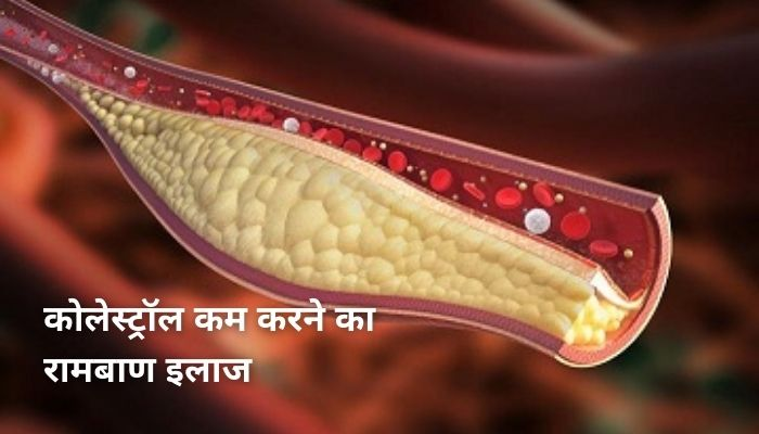 कोलेस्ट्रॉल कम करने का रामबाण इलाज   Cholesterol Kam Karne Ke Upay
